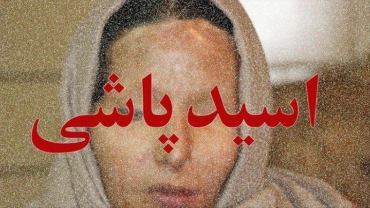 وکیل اسید پاشی در مشهد ۰۹۱۵۲۰۵۵۹۸۶